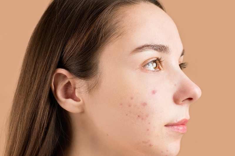 Afrodita gel za bubuljice lice