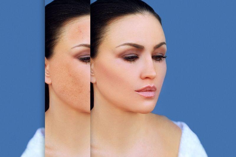 kreme protiv hiperpigmentacije
