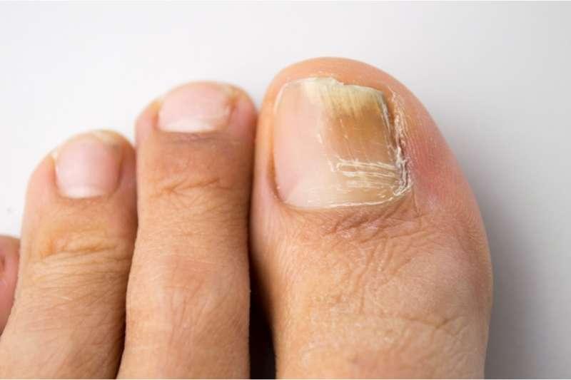 nokti gljivicna infekcija