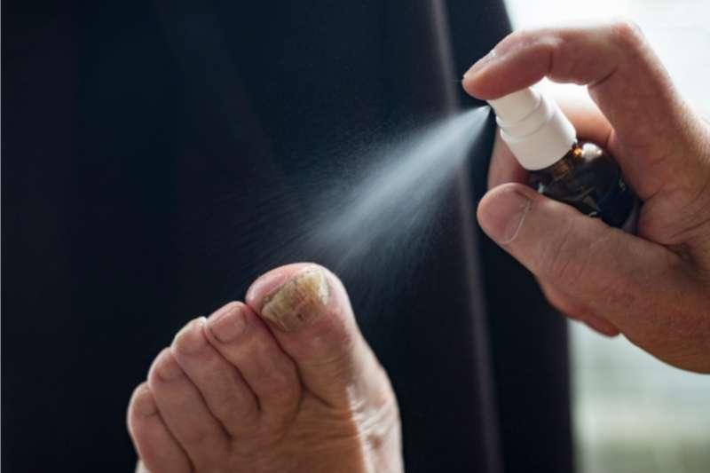 sprej gljivice nokti