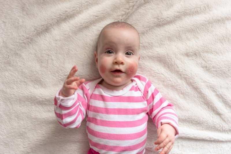 kreme za crvenilo kod beba