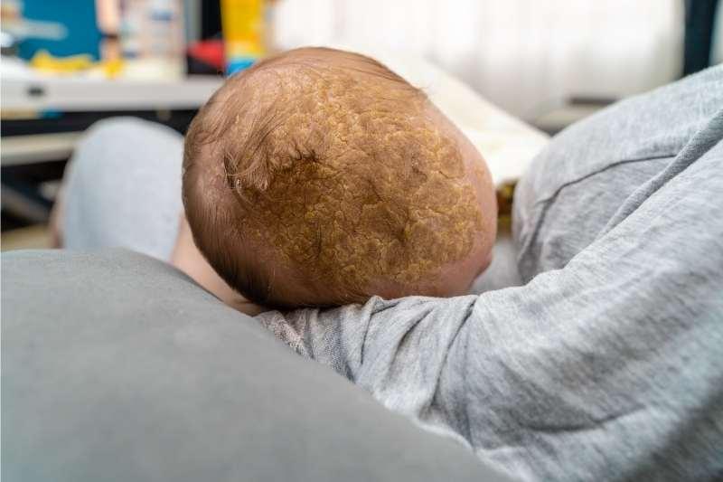 temenjaca u kosi bebe